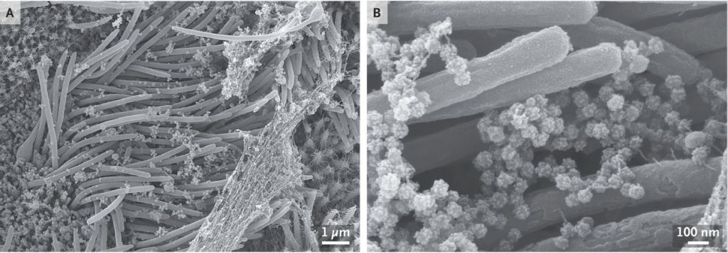 Image of COVID-19 virus (ball-like structures) on the ends of cilia in the respiratory tract